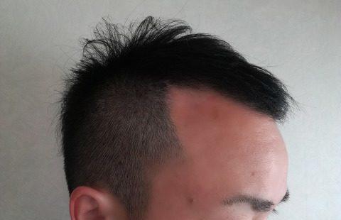 薄毛の髪型 散髪が必須【ゆる見!美容室でビフォーアフター】