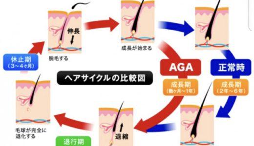【比較】AGAスキンクリニックで1年間治療した【体験談】